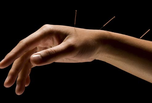 photolibrary_rf_photo_of_acupuncture_in_arm